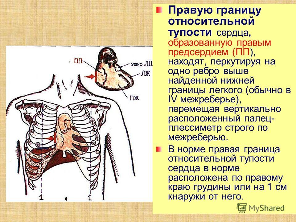 Правую границу относительной тупости сердца, образованную правым предсердием (ПП), находят, перкутируя на одно ребро выше найденной нижней границы легкого (обычно в IV межреберье), перемещая вертикально расположенный палец- плессиметр строго по межре