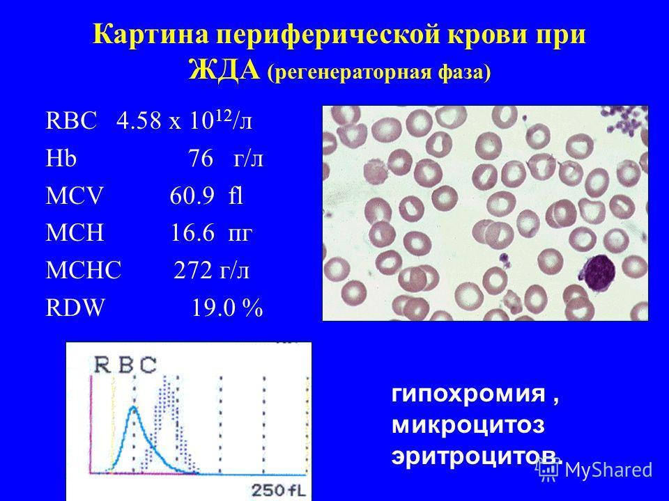 Картина периферической крови при ЖДА (регенераторная фаза) RBC 4.58 x 10 12 /л Hb 76 г/л MCV 60.9 fl MCH 16.6 пг MCHC 272 г/л RDW 19.0 % гипохромия, микроцитоз эритроцитов.