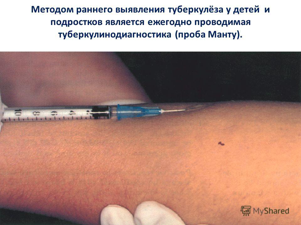 Методом раннего выявления туберкулёза у детей и подростков является ежегодно проводимая туберкулинодиагностика (проба Манту).