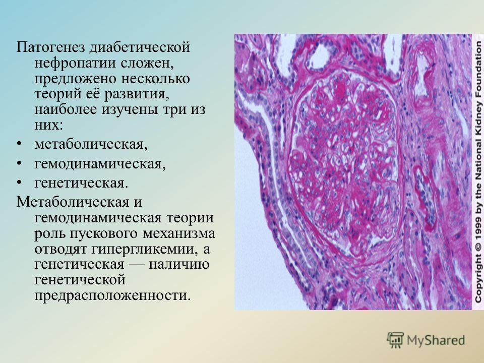 Патогенез диабетической нефропатии сложен, предложено несколько теорий её развития, наиболее изучены три из них: метаболическая, гемодинамическая, генетическая. Метаболическая и гемодинамическая теории роль пускового механизма отводят гипергликемии,