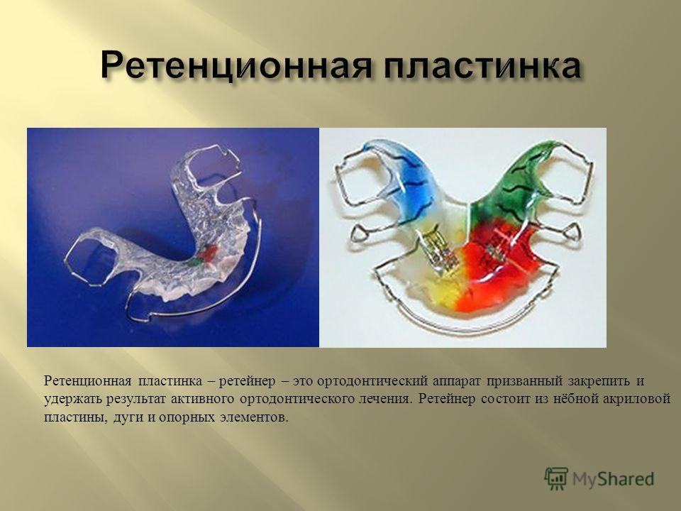 Ретенционная пластинка – ретейнер – это ортодонтический аппарат призванный закрепить и удержать результат активного ортодонтического лечения. Ретейнер состоит из нёбной акриловой пластины, дуги и опорных элементов.