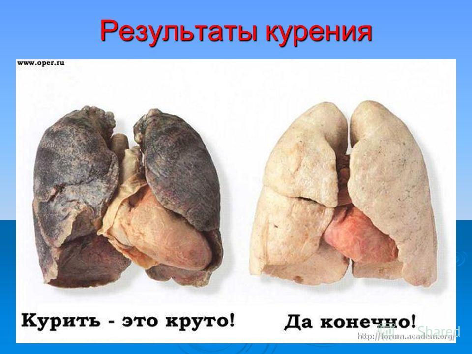 Результаты курения