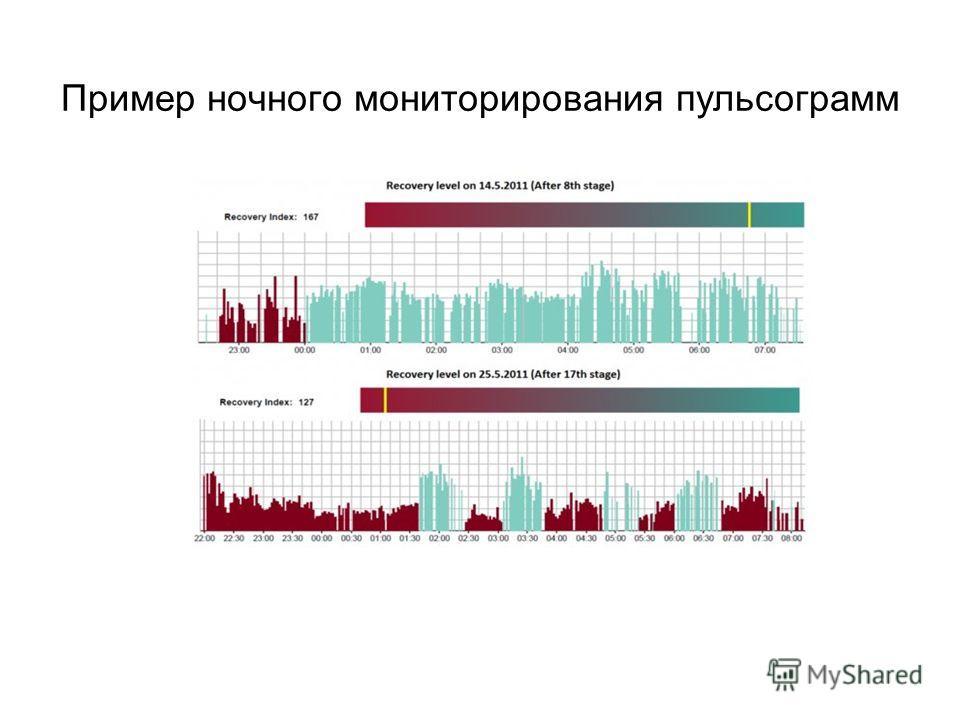Пример ночного мониторирования пульсограмм