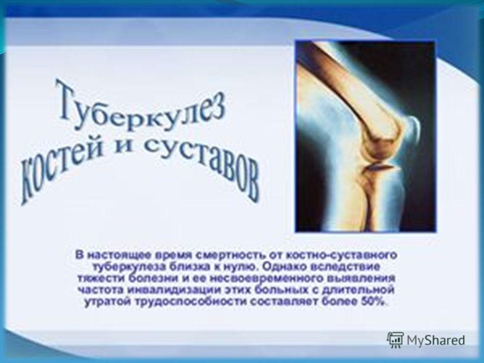 Боли в суставах при туберкулезе ортез на коленный сустав шарнирный регулируемый б/у