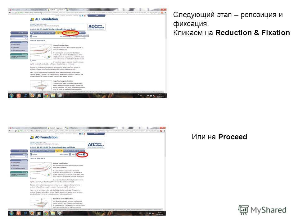 Следующий этап – репозиция и фиксация. Кликаем на Reduction & Fixation Или на Proceed