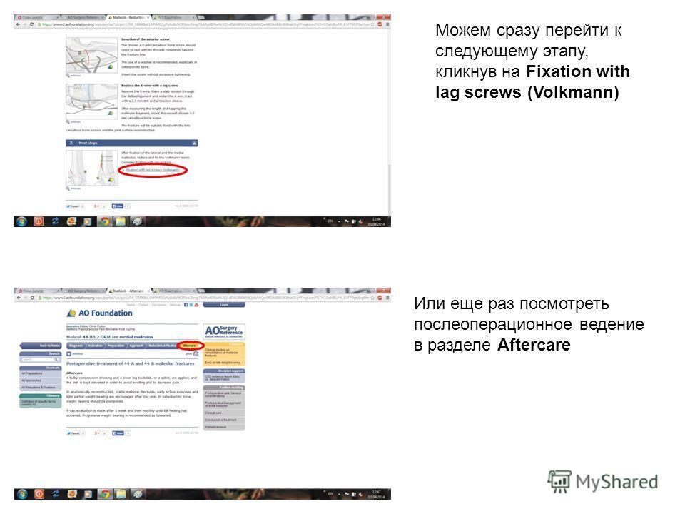 Можем сразу перейти к следующему этапу, кликнув на Fixation with lag screws (Volkmann) Или еще раз посмотреть послеоперационное ведение в разделе Aftercare