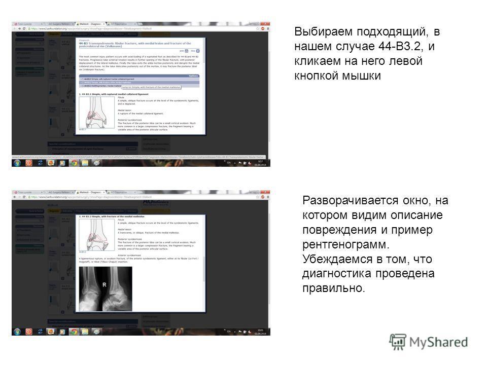 Выбираем подходящий, в нашем случае 44-В3.2, и кликаем на него левой кнопкой мышки Разворачивается окно, на котором видим описание повреждения и пример рентгенограмм. Убеждаемся в том, что диагностика проведена правильно.