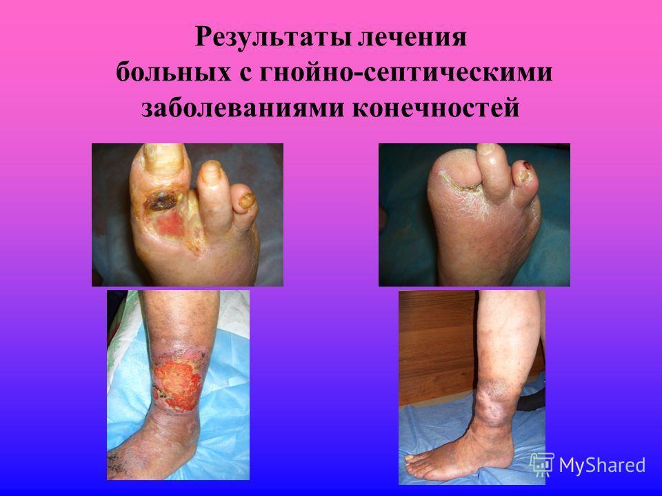 Результаты лечения больных с гнойно-септическими заболеваниями конечностей