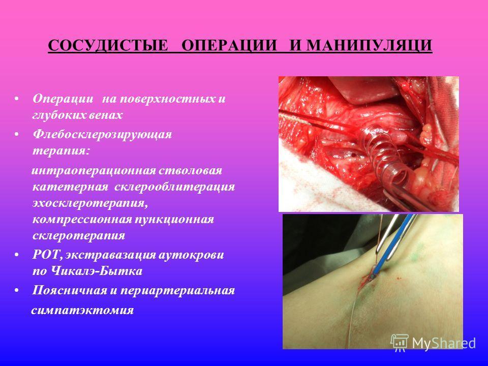 СОСУДИСТЫЕ ОПЕРАЦИИ И МАНИПУЛЯЦИ Операции на поверхностных и глубоких венах Флебосклерозирующая терапия: интраоперационная стволовая катетерная склерооблитерация эхосклеротерапия, компрессионная пункционная склеротерапия РОТ, экстравазация аутокрови