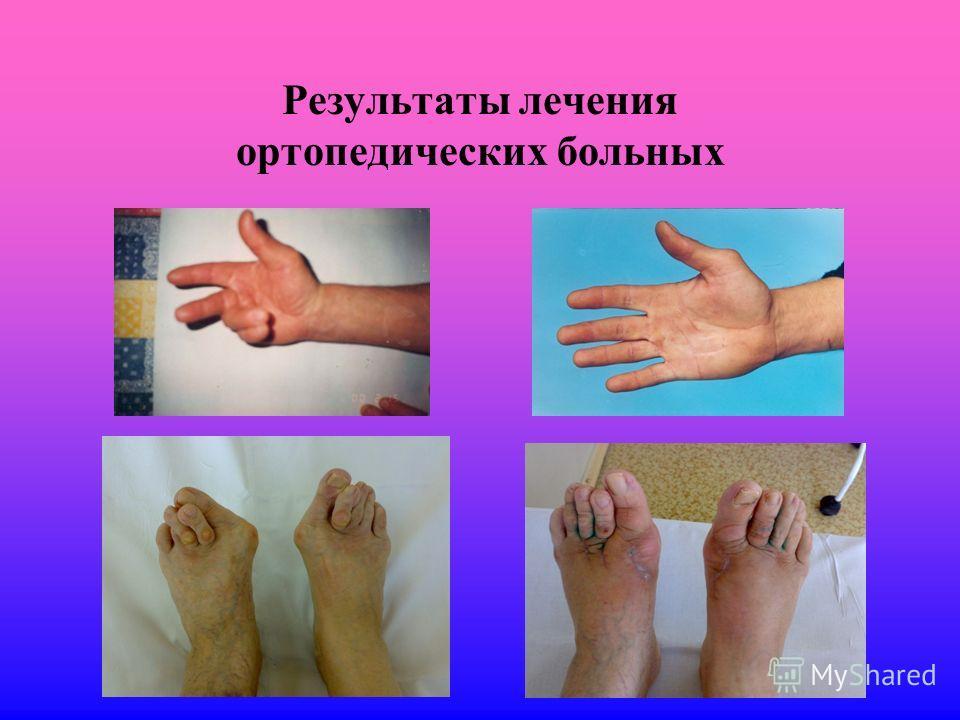 Результаты лечения ортопедических больных