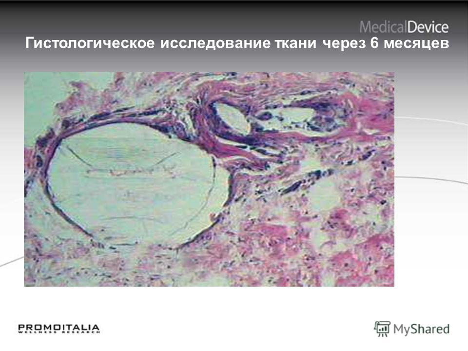 26 Гистологическое исследование ткани через 6 месяцев