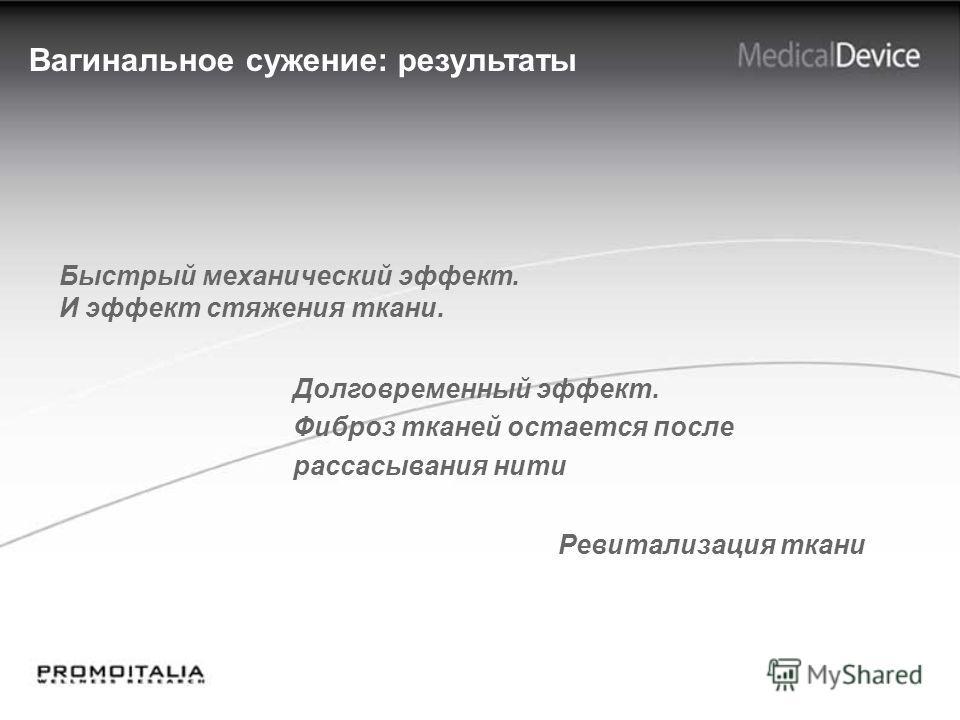 Вагинальное сужение: результаты Быстрый механический эффект. И эффект стяжения ткани. Долговременный эффект. Фиброз тканей остается после рассасывания нити Ревитализация ткани