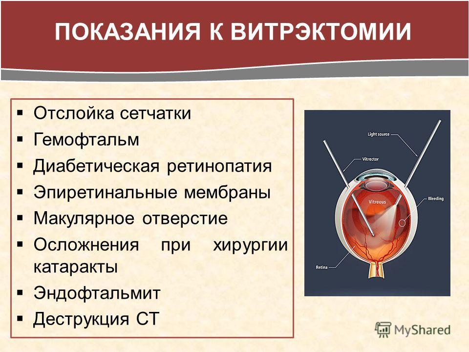 Отслойка сетчатки Гемофтальм Диабетическая ретинопатия Эпиретинальные мембраны Макулярное отверстие Осложнения при хирургии катаракты Эндофтальмит Деструкция СТ ПОКАЗАНИЯ К ВИТРЭКТОМИИ