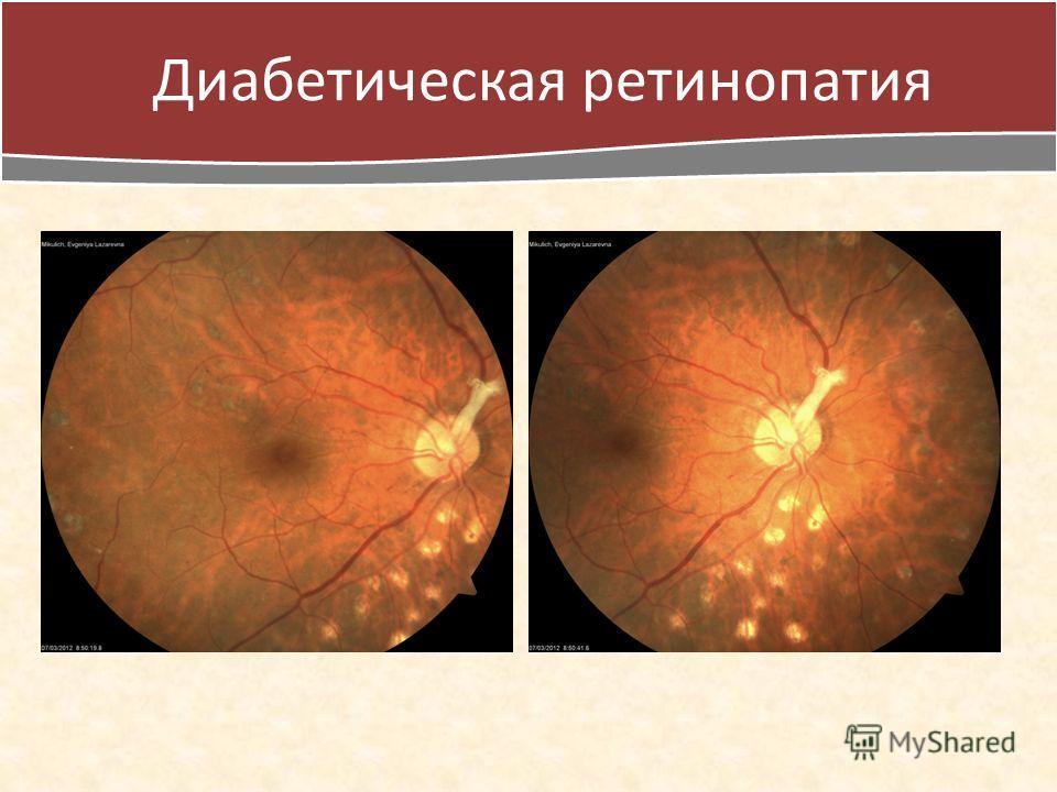 Лечение ретинопатии при сахарном диабете капли