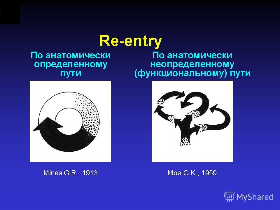 Левое предсердие Правое предсердие Левый желудочек Правый желудочек Множественные micro-reentry в левом предсердии АВУ СУ