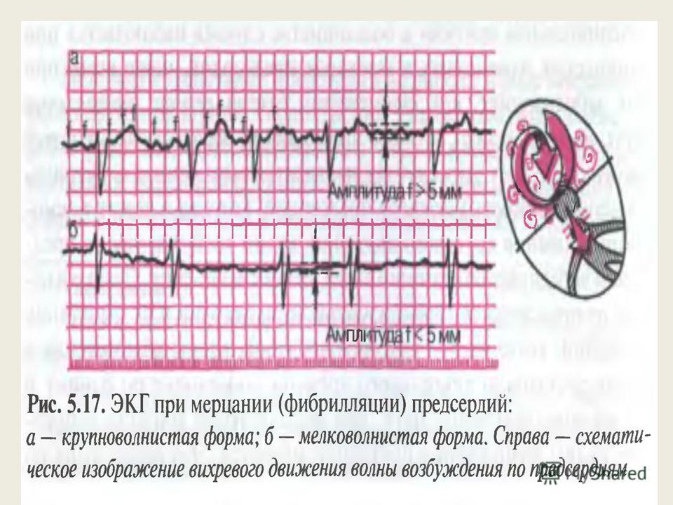 Отсутствие во всех отведениях зубца Р Наличие F волн имеющих различную форму и амплитуду Нерегулярность желудочковых комплексов ( интервалы R-R разные) QRS нормальный не измененный без деформаций и уширения.