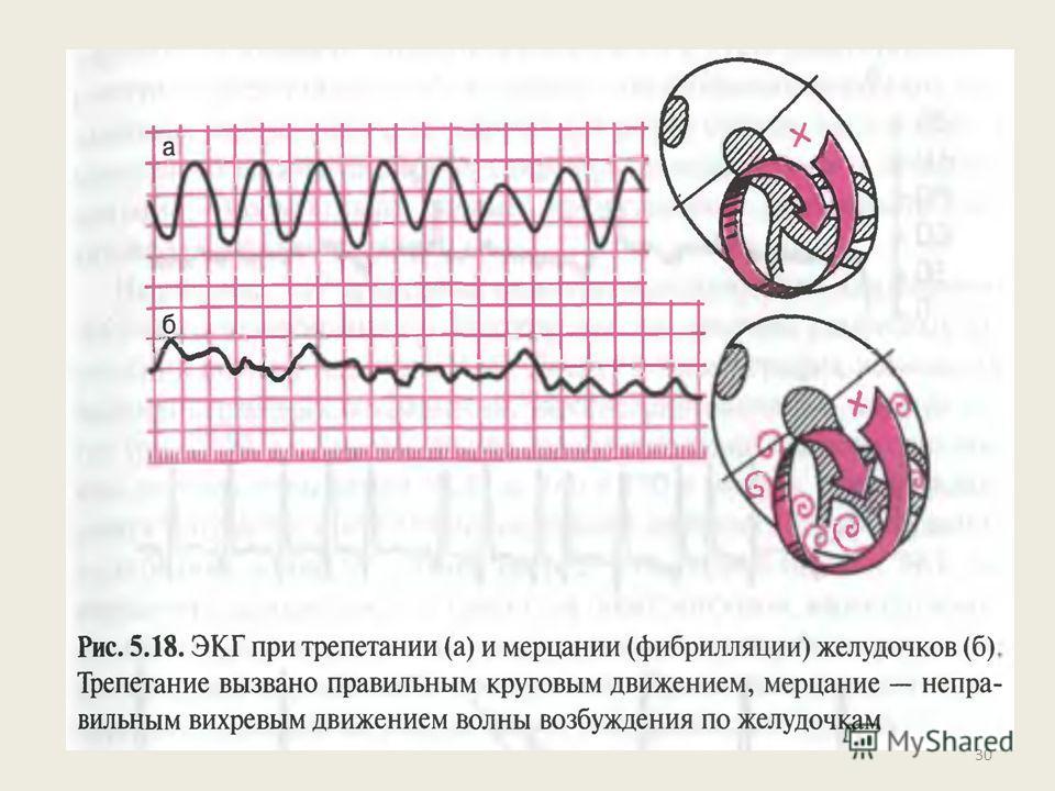 Трепетание и мерцание ( фибрилляция) желудочков Трепетание желудочков – это частое (до 200- 300 в мин) ритмичное их возбуждение, обусловленное устойчивым круговым движением импульса (re- entry),локализованного в желудочках. Быстро переходит в мерцани
