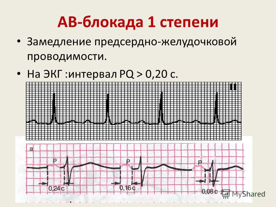 Внутрипредсердная блокада Это нарушение проведения импульса по проводящей системе предсердий. На ЭКГ: Увеличение продолжительности зубца Р более 0,11 сек Расширение зубца Р