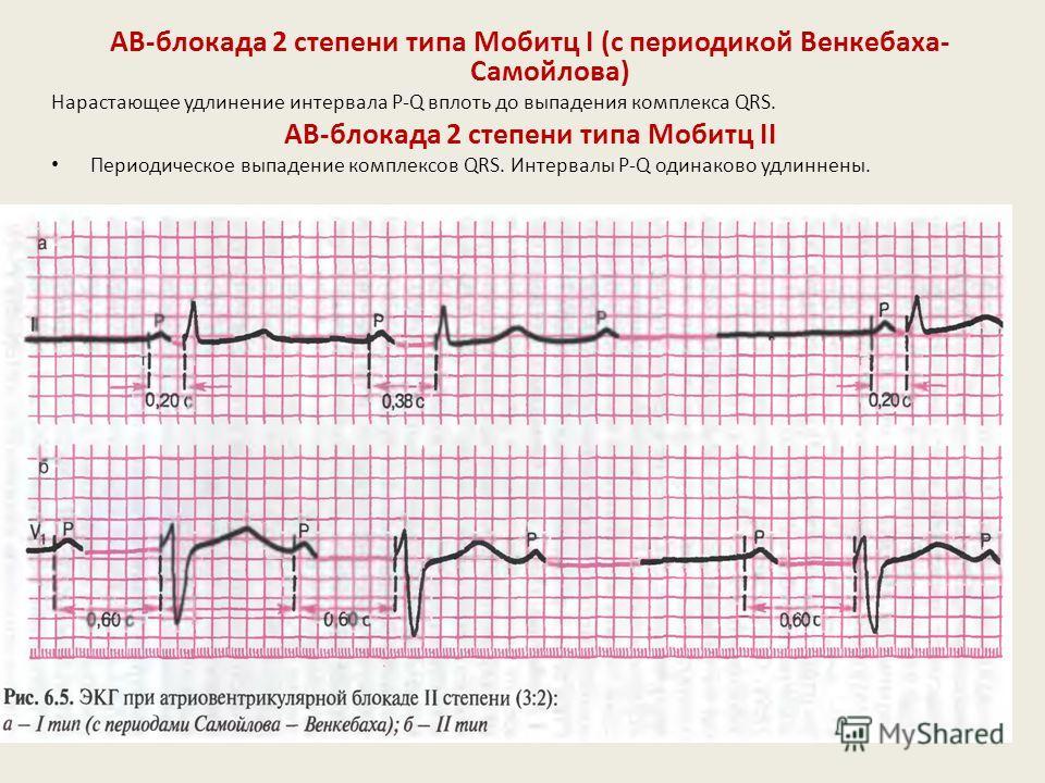 АВ-блокада 1 степени Замедление предсердно-желудочковой проводимости. На ЭКГ :интервал PQ > 0,20 с.