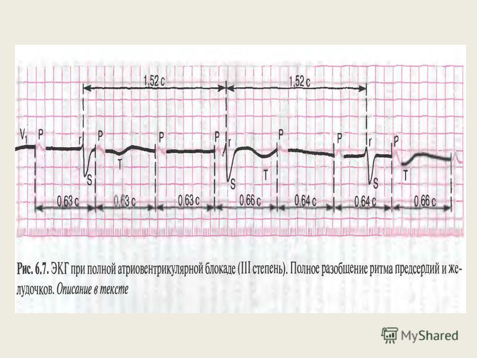 АВ-блокада III степени ( полная АВ-блокада) Полное прекращение проведения импульса от предсердий к желудочкам, в результате чего предсердия и желудочки возбуждаются и сокращаются независимо друг от друга. Предсердия возбуждаются импульсами из СА-узла