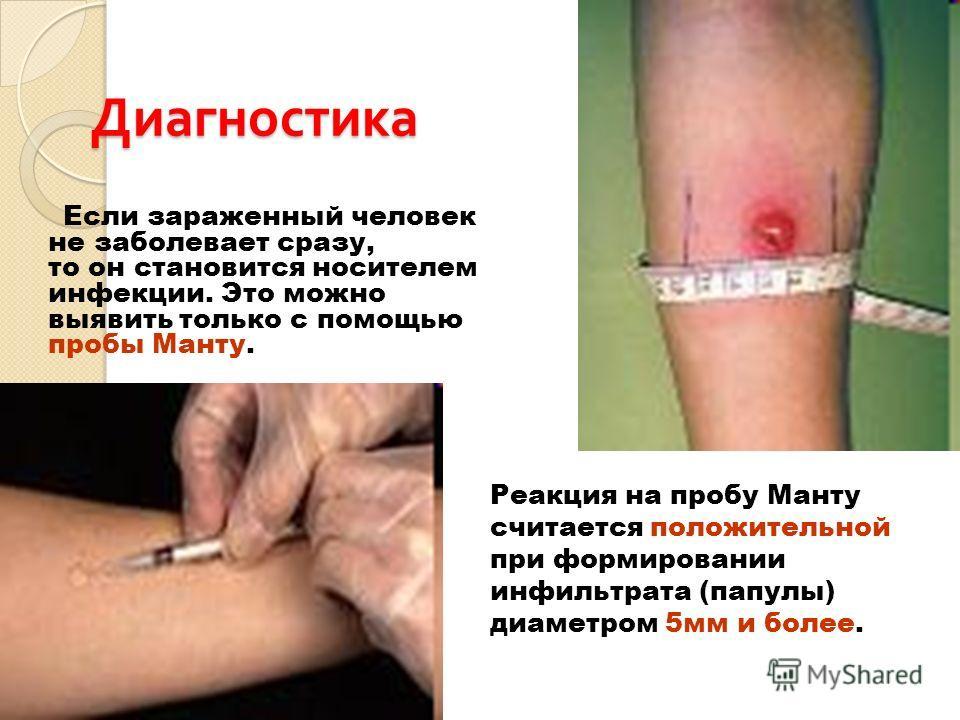 Диагностика Если зараженный человек не заболевает сразу, то он становится носителем инфекции. Это можно выявить только с помощью пробы Манту. Реакция на пробу Манту считается положительной при формировании инфильтрата (папулы) диаметром 5мм и более.