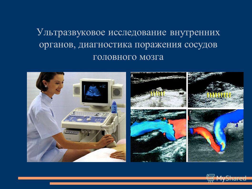 Ультразвуковое исследование внутренних органов, диагностика поражения сосудов головного мозга