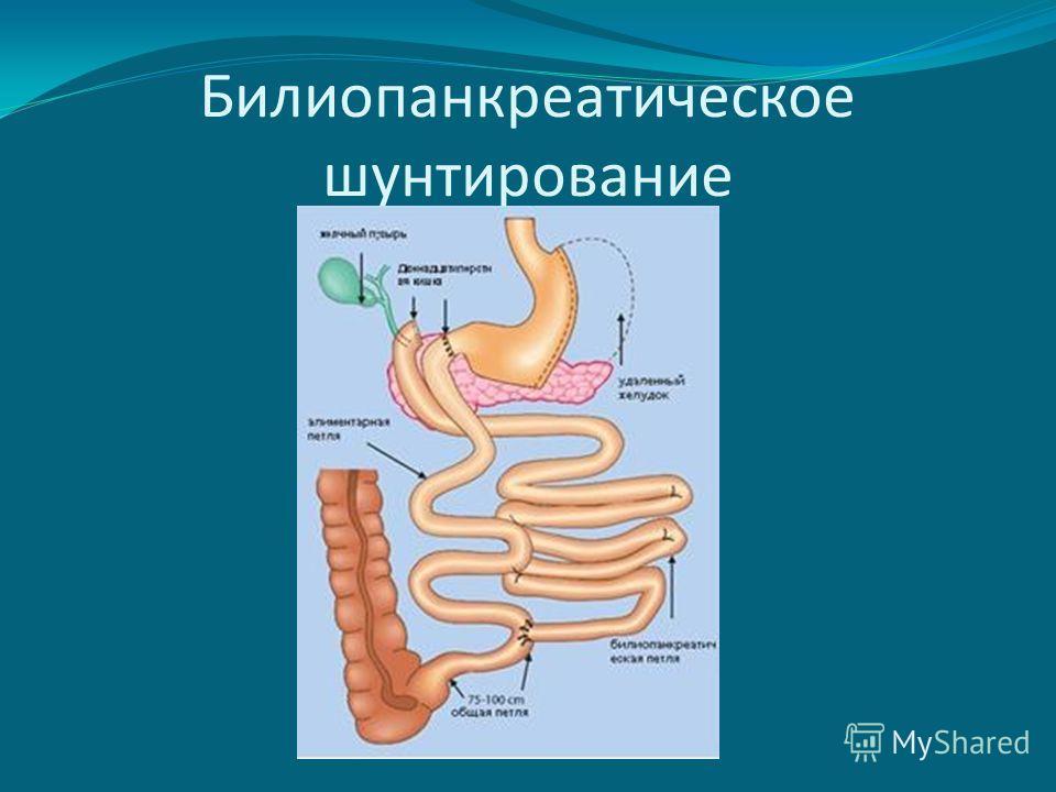 Билиопанкреатическое шунтирование