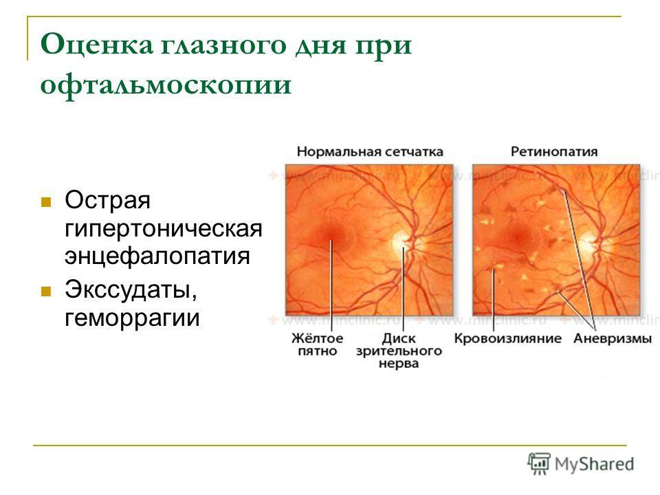Оценка глазного дня при офтальмоскопии Острая гипертоническая энцефалопатия Экссудаты, геморрагии