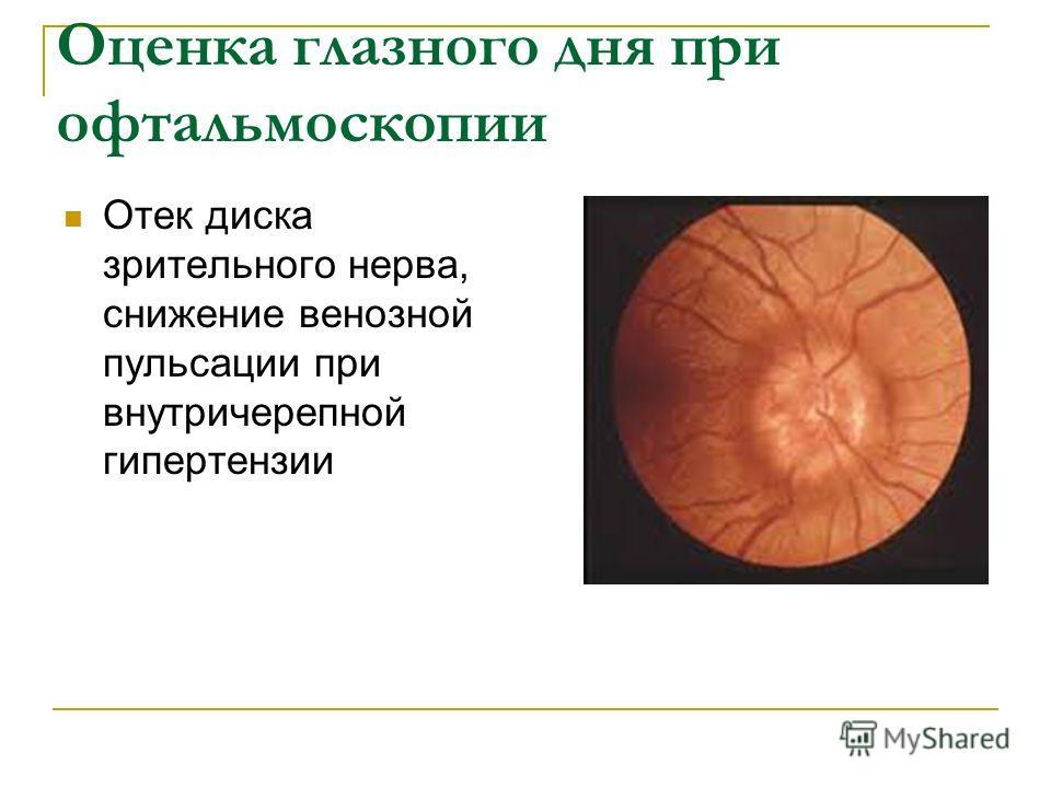Оценка глазного дня при офтальмоскопии Отек диска зрительного нерва, снижение венозной пульсации при внутричерепной гипертензии
