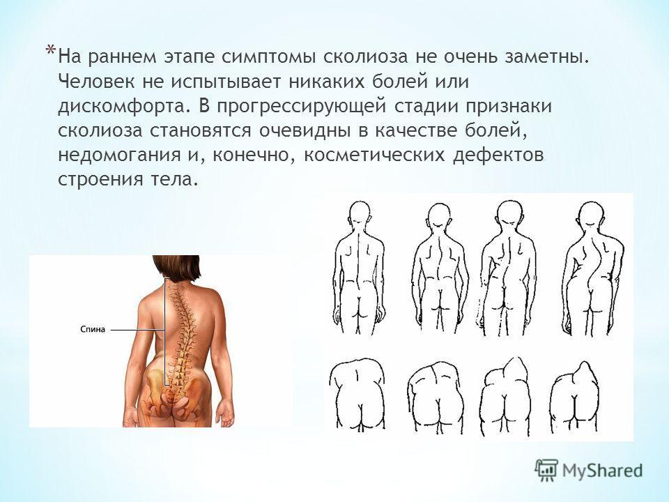 * На раннем этапе симптомы сколиоза не очень заметны. Человек не испытывает никаких болей или дискомфорта. В прогрессирующей стадии признаки сколиоза становятся очевидны в качестве болей, недомогания и, конечно, косметических дефектов строения тела.