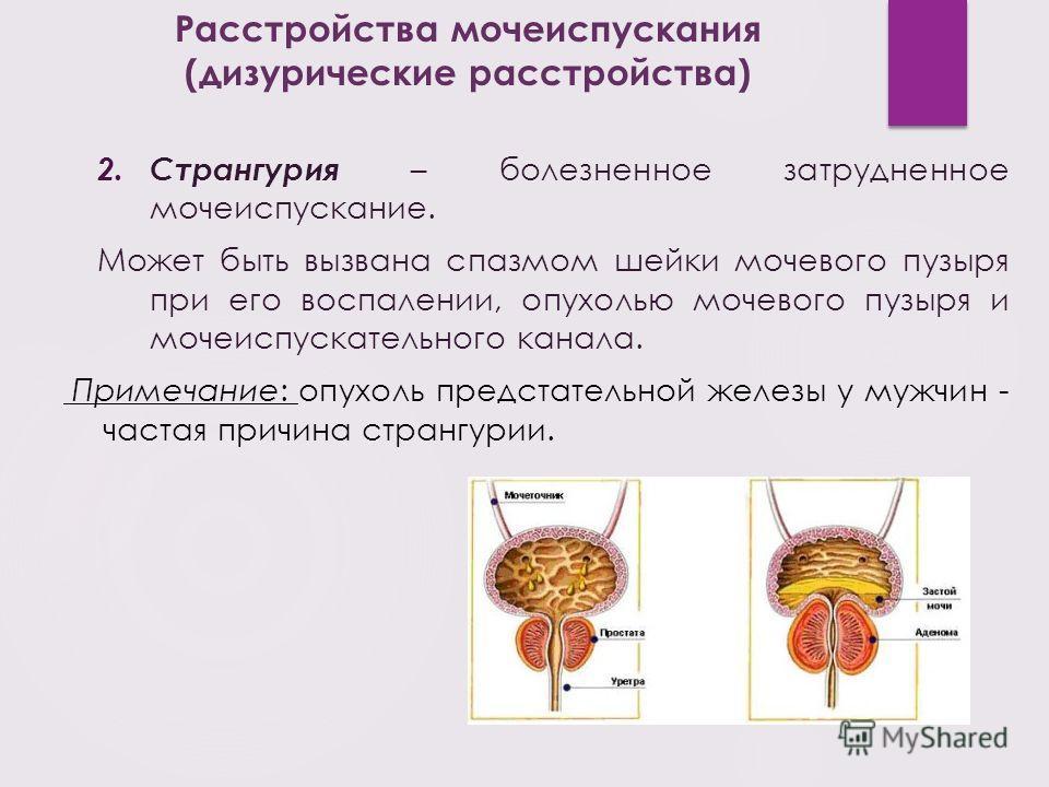 2. Странгурия – болезненное затрудненное мочеиспускание. Может быть вызвана спазмом шейки мочевого пузыря при его воспалении, опухолью мочевого пузыря и мочеиспускательного канала. Примечание: опухоль предстательной железы у мужчин - частая причина с