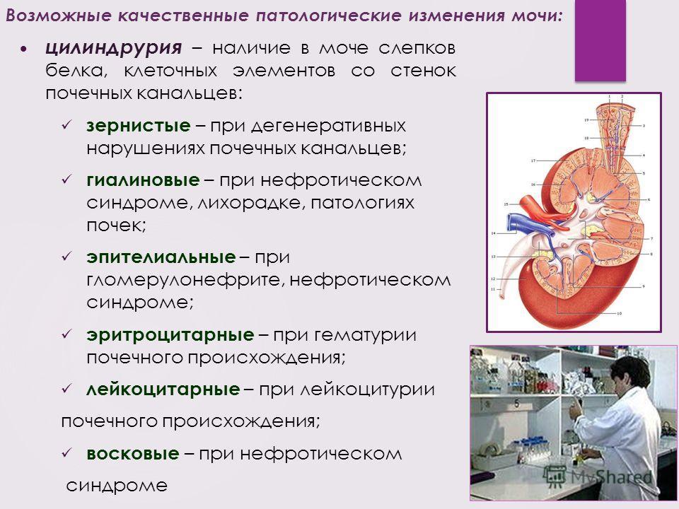 цилиндрурия – наличие в моче слепков белка, клеточных элементов со стенок почечных канальцев: зернистые – при дегенеративных нарушениях почечных канальцев; гиалиновые – при нефротическом синдроме, лихорадке, патологиях почек; эпителиальные – при глом
