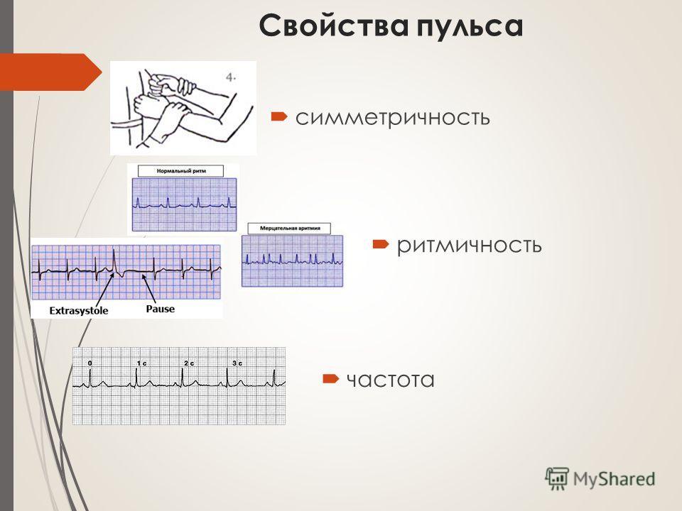 Свойства пульса симметричность ритмичность частота