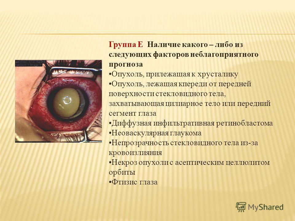 Группа Е Наличие какого – либо из следующих факторов неблагоприятного прогноза Опухоль, прилежащая к хрусталику Опухоль, лежащая кпереди от передней поверхности стекловидного тела, захватывающая цилиарное тело или передний сегмент глаза Диффузная инф