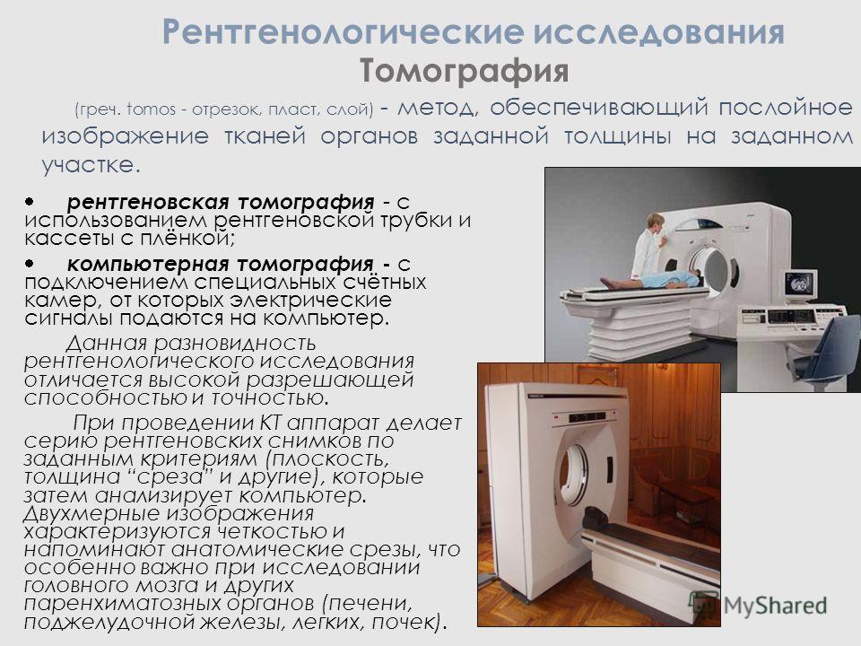 Томография рентгеновская томография - с использованием рентгеновской трубки и кассеты с плёнкой; компьютерная томография - с подключением специальных счётных камер, от которых электрические сигналы подаются на компьютер. Данная разновидность рентгено