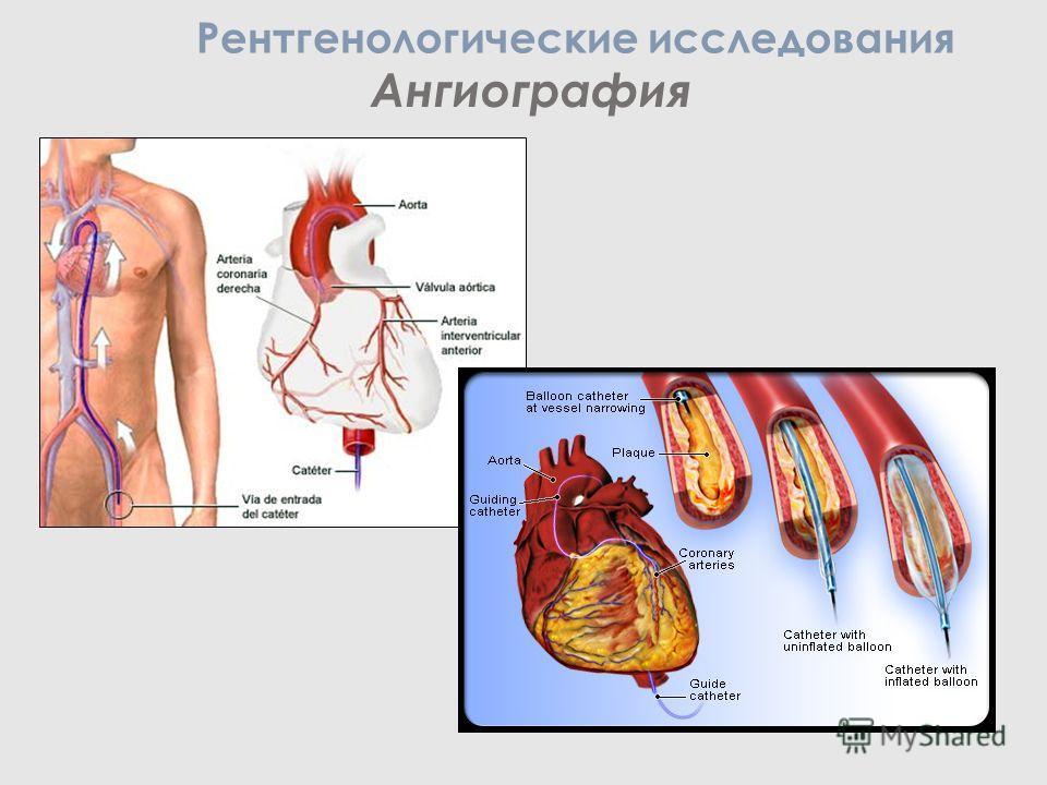 Ангиография Рентгенологические исследования