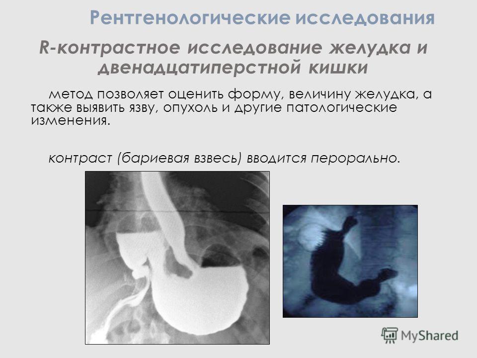 R-контрастное исследование желудка и двенадцатиперстной кишки метод позволяет оценить форму, величину желудка, а также выявить язву, опухоль и другие патологические изменения. контраст (бариевая взвесь) вводится перорально. Рентгенологические исследо