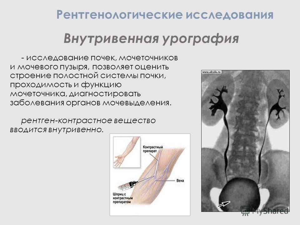 Внутривенная урография - исследование почек, мочеточников и мочевого пузыря, позволяет оценить строение полостной системы почки, проходимость и функцию мочеточника, диагностировать заболевания органов мочевыделения. рентген-контрастное вещество вводи