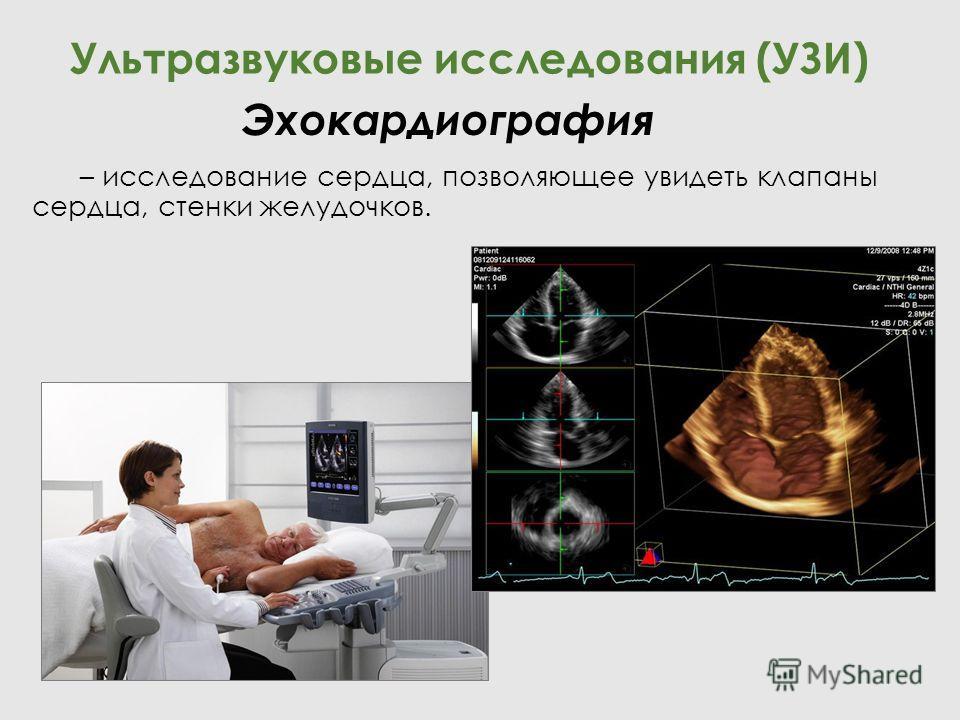 – исследование сердца, позволяющее увидеть клапаны сердца, стенки желудочков. Ультразвуковые исследования (УЗИ) Эхокардиография