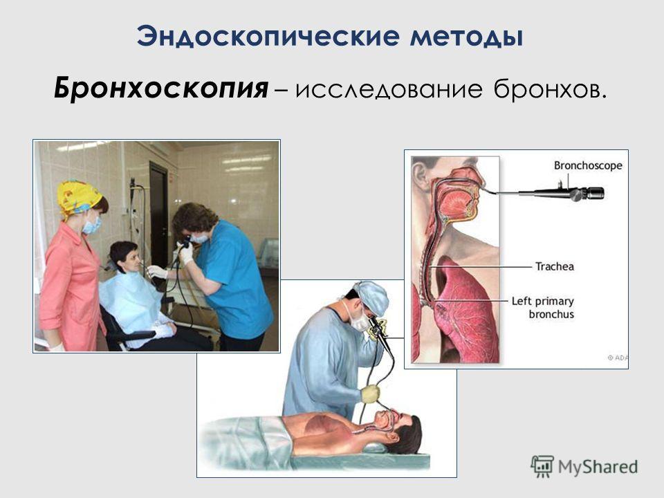Бронхоскопия – исследование бронхов. Эндоскопические методы