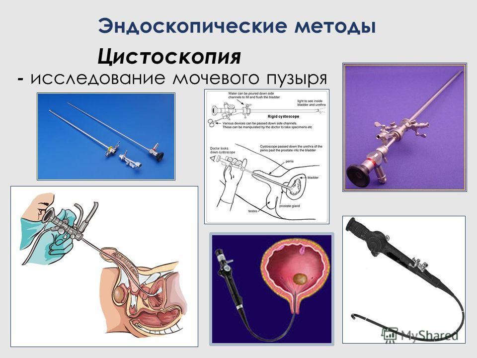 Цистоскопия - исследование мочевого пузыря Эндоскопические методы