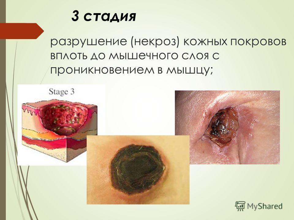 разрушение (некроз) кожных покровов вплоть до мышечного слоя с проникновением в мышцу; 3 стадия