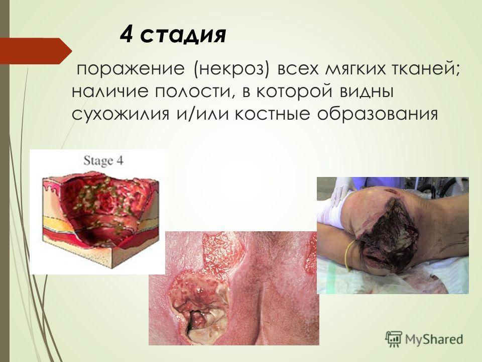 поражение (некроз) всех мягких тканей; наличие полости, в которой видны сухожилия и/или костные образования 4 стадия