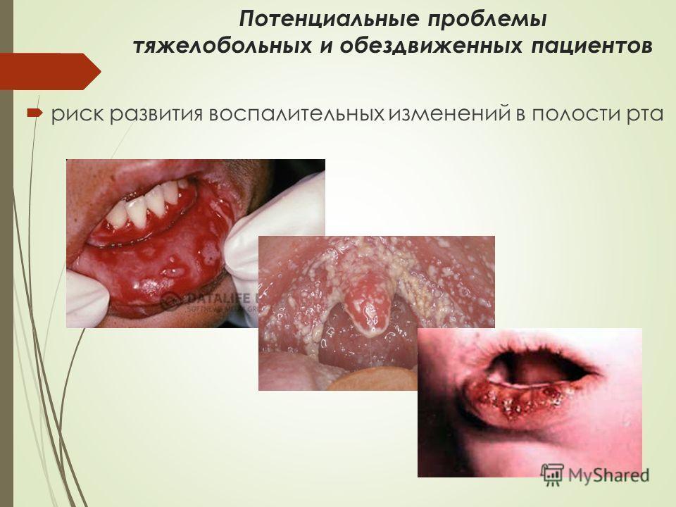 Потенциальные проблемы тяжелобольных и обездвиженных пациентов риск развития воспалительных изменений в полости рта