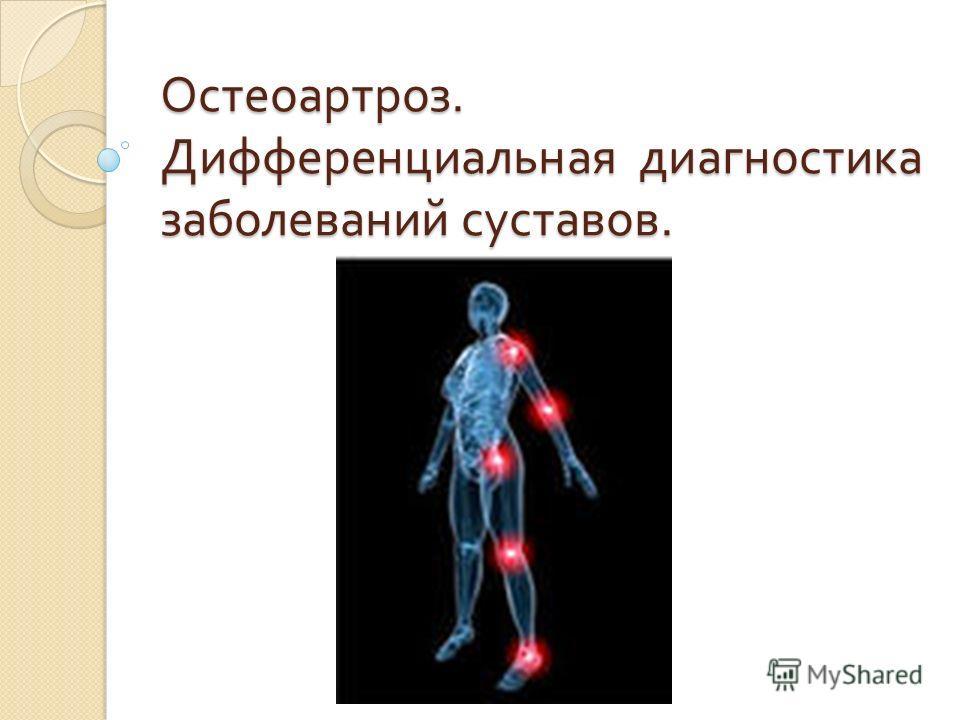 Остеоартроз. Дифференциальная диагностика заболеваний суставов.