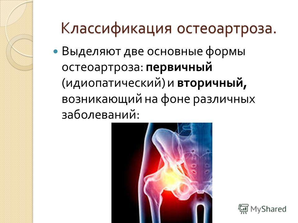 Классификация остеоартроза. Выделяют две основные формы остеоартроза : первичный ( идиопатический ) и вторичный, возникающий на фоне различных заболеваний :