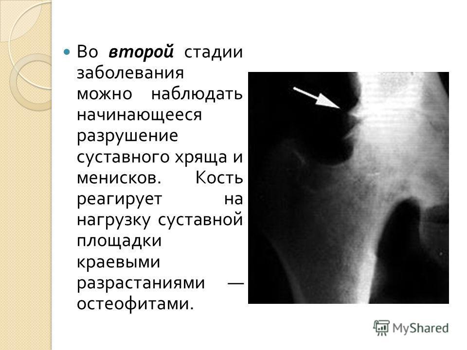 Во второй стадии заболевания можно наблюдать начинающееся разрушение суставного хряща и менисков. Кость реагирует на нагрузку суставной площадки краевыми разрастаниями остеофитами.