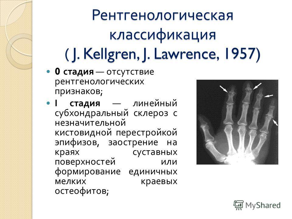 Рентгенологическая классификация ( J. Kellgren, J. Lawrence, 1957) 0 стадия отсутствие рентгенологических признаков ; І стадия линейный субхондральный склероз с незначительной кистовидной перестройкой эпифизов, заострение на краях суставных поверхнос