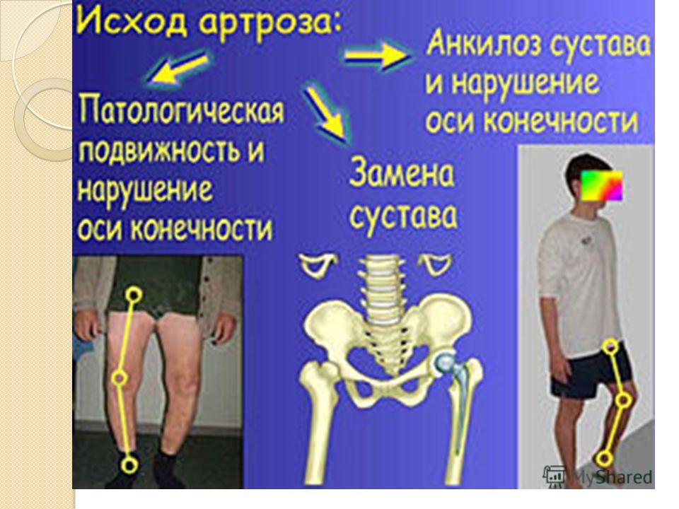 болезнь когда стираются суставы
