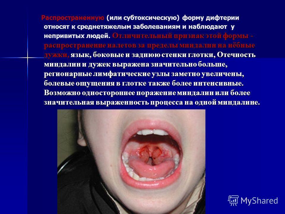 Отличительный признак этой формы - распространение налетов за пределы миндалин на нёбные дужки, язык, боковые и заднюю стенки глотки, Отечность миндалин и дужек выражена значительно больше, регионарные лимфатические узлы заметно увеличены, болевые ощ
